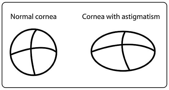 astigmatism-image.jpg